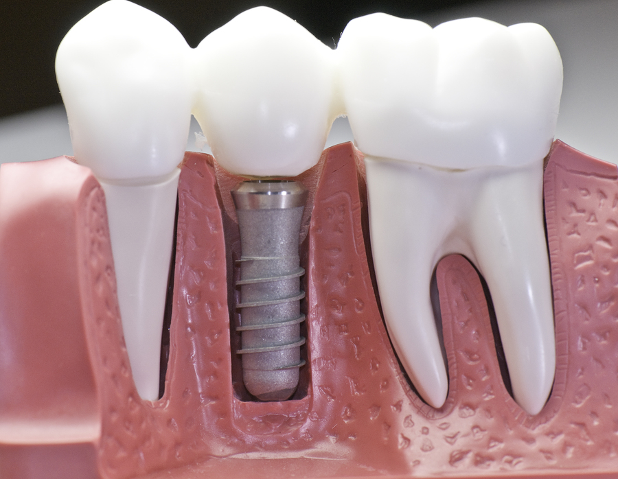 dental implants Paramount CA